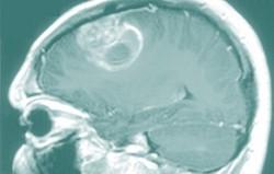 cervello glioma